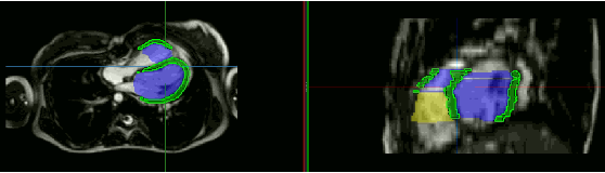 Figure 3 for Unsupervised Domain Adaptation from Axial toShort-Axis Multi-Slice Cardiac MR Images byIncorporating Pretrained Task Networks