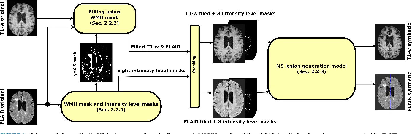 Figure 1 for Multiple Sclerosis Lesion Synthesis in MRI using an encoder-decoder U-NET