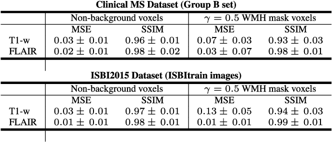 Figure 4 for Multiple Sclerosis Lesion Synthesis in MRI using an encoder-decoder U-NET
