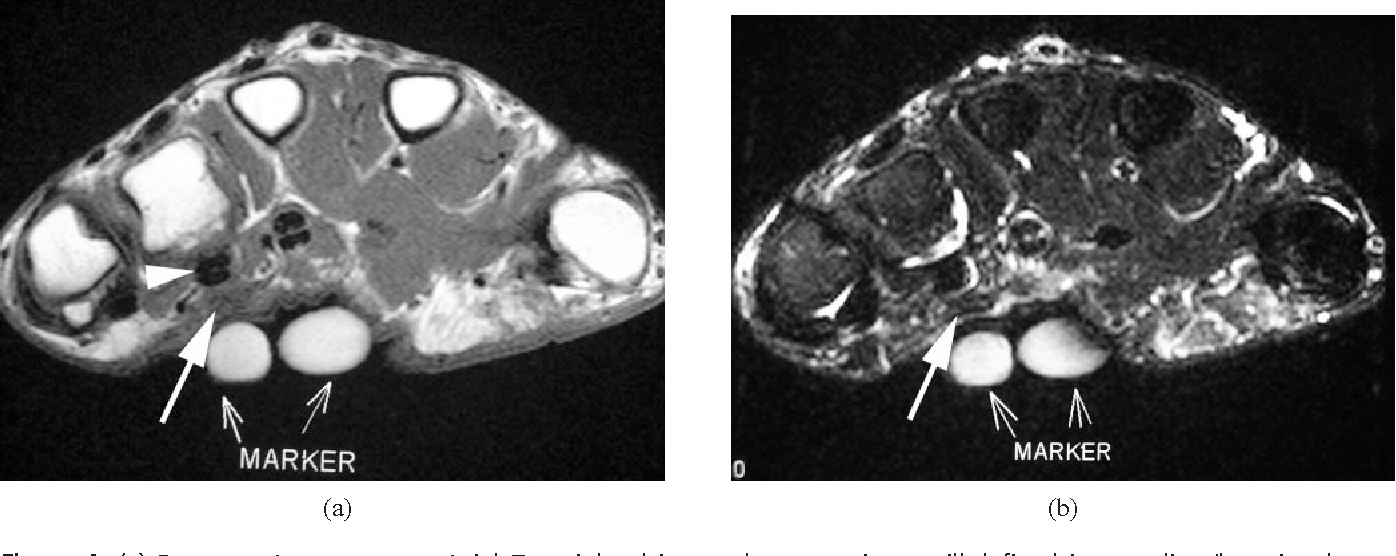 Figure 10 from MRI of soft tissue masses of the hand and wrist ...