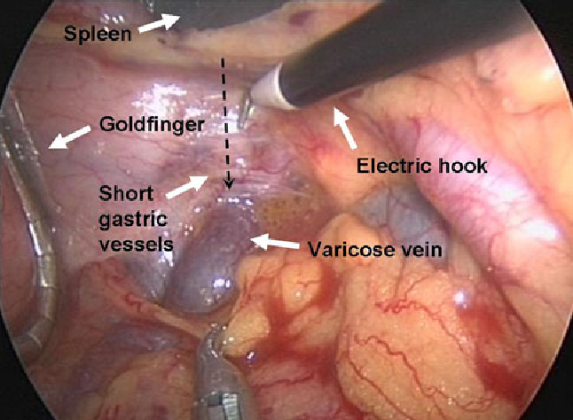 Fig. 3 Exposure and division of the short gastric vessels. The peritoneum viscerale of the short gastric vessels was divided along the dotted line