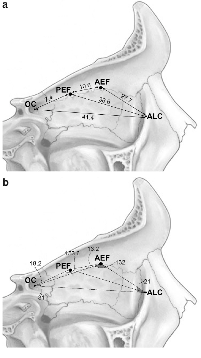 Computer-assisted analysis of anatomical relationships of the ...