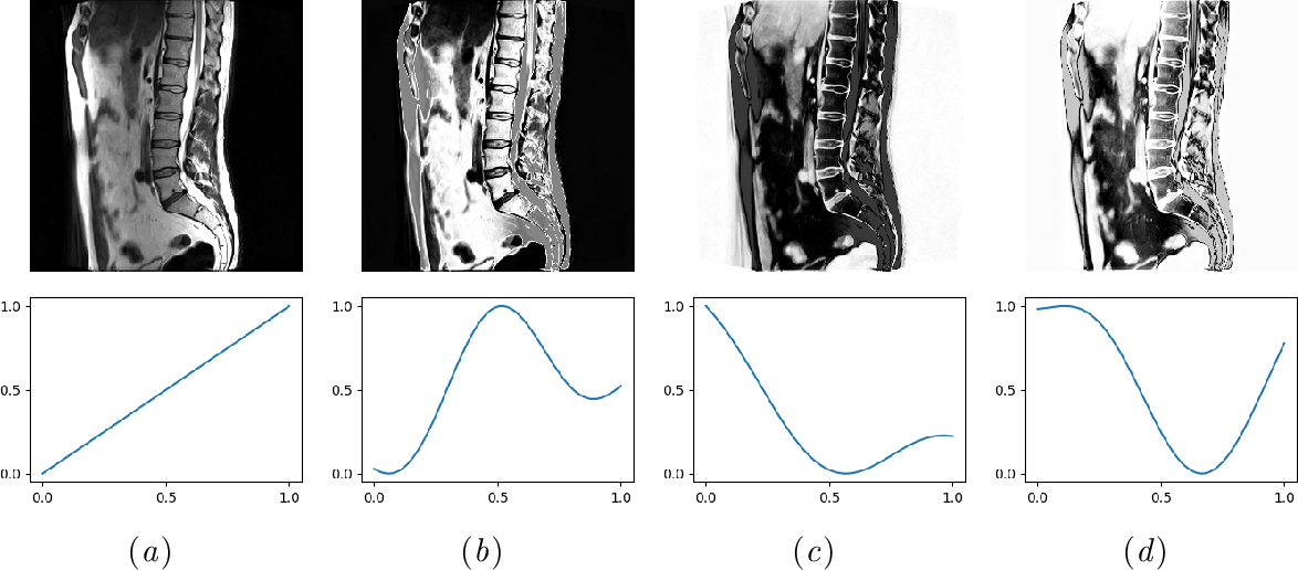 Figure 1 for Random smooth gray value transformations for cross modality learning with gray value invariant networks