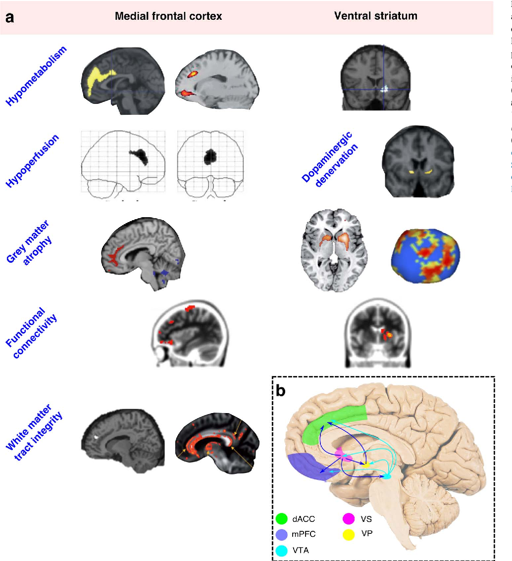 Figure 4 From The Anatomy Of Apathy A Neurocognitive Framework For