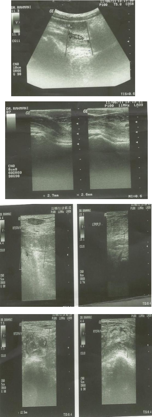 Figure 1. Deep vein Doppler ultrasound of left lower extremity showed that common iliac vein common femoral vein, external iliac vein and superficial and deep femoral vein & popliteal vein were enlarged and contained with echogenous clot.