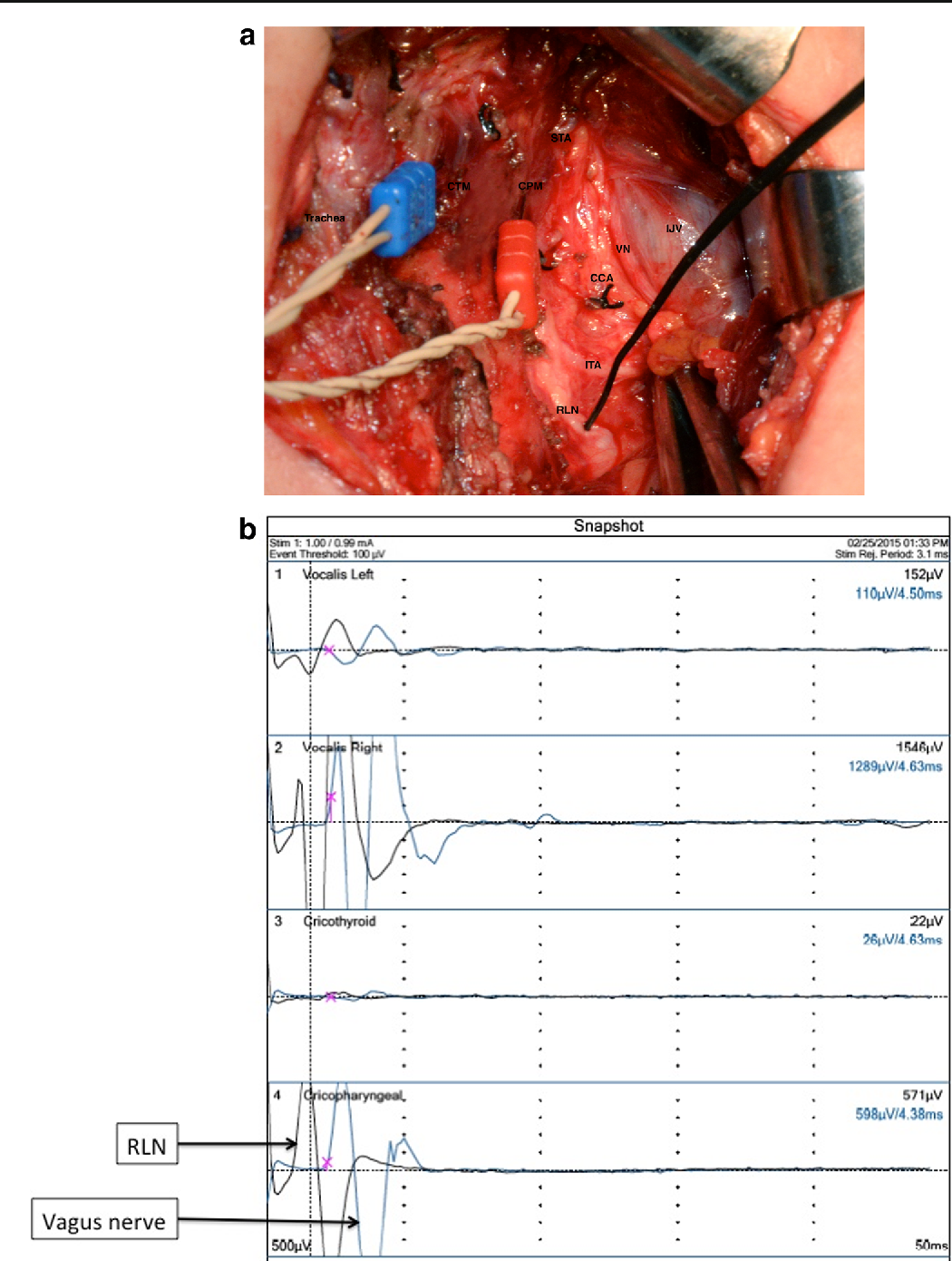 Innervation of the human cricopharyngeal muscle by the recurrent ...