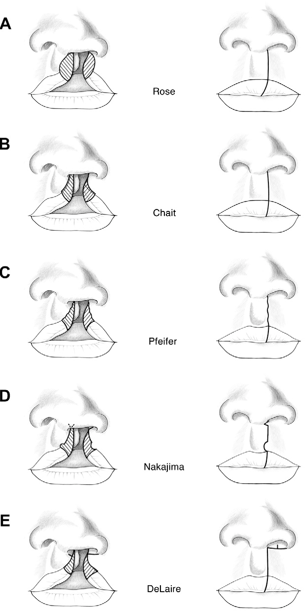 Analysis and evolution of rotation principles in unilateral cleft ...