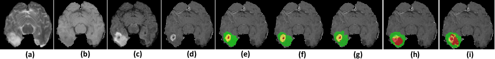 Figure 1 for ACN: Adversarial Co-training Network for Brain Tumor Segmentation with Missing Modalities