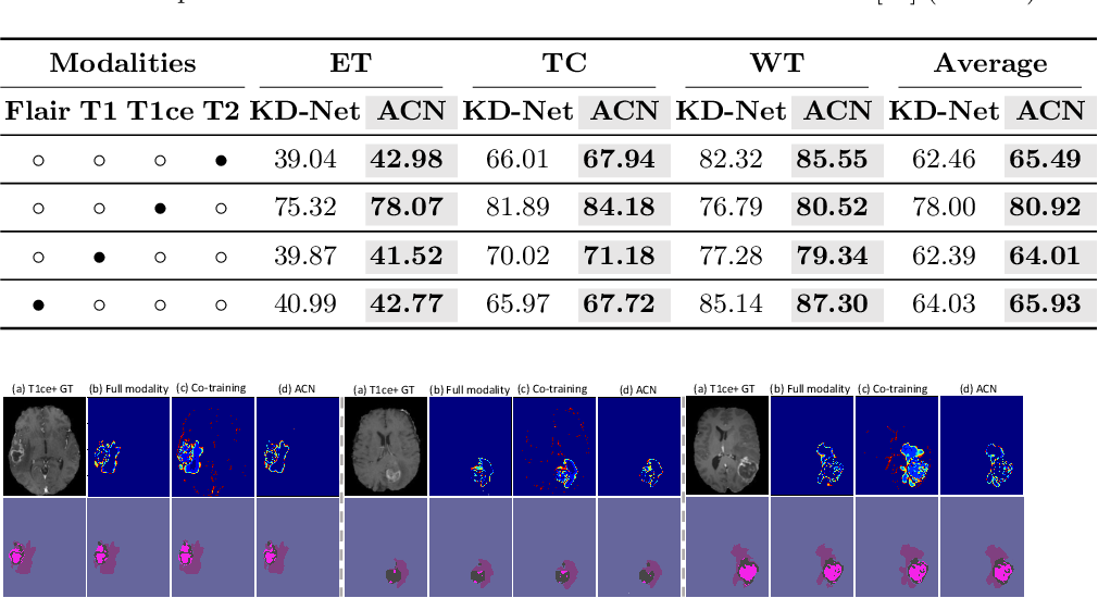 Figure 4 for ACN: Adversarial Co-training Network for Brain Tumor Segmentation with Missing Modalities