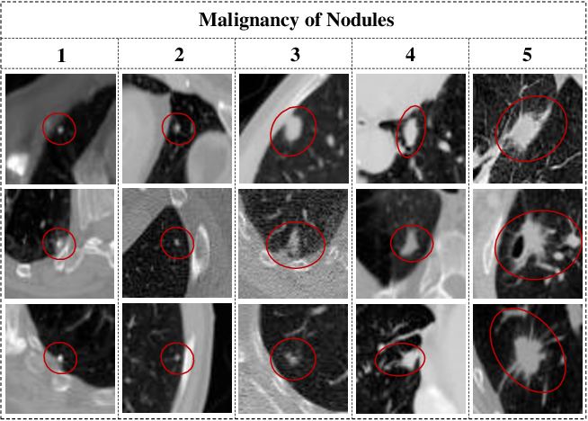 Figure 1 for Learning from Ambiguous Labels for Lung Nodule Malignancy Prediction