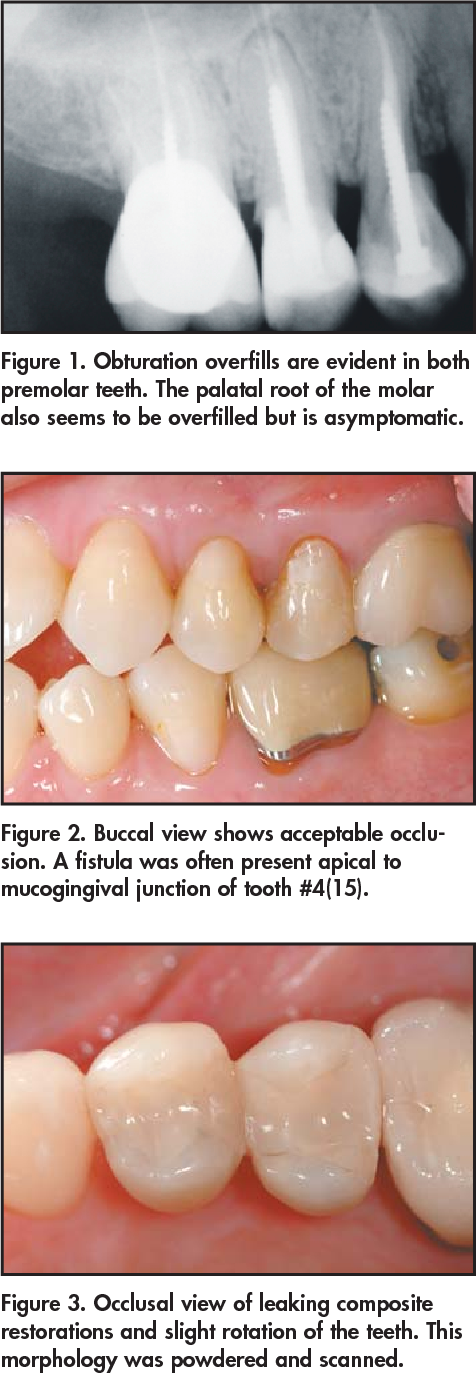 Figure 3. Occlusal view of leaking composite restorations and slight rotation of the teeth. This morphology was powdered and scanned.