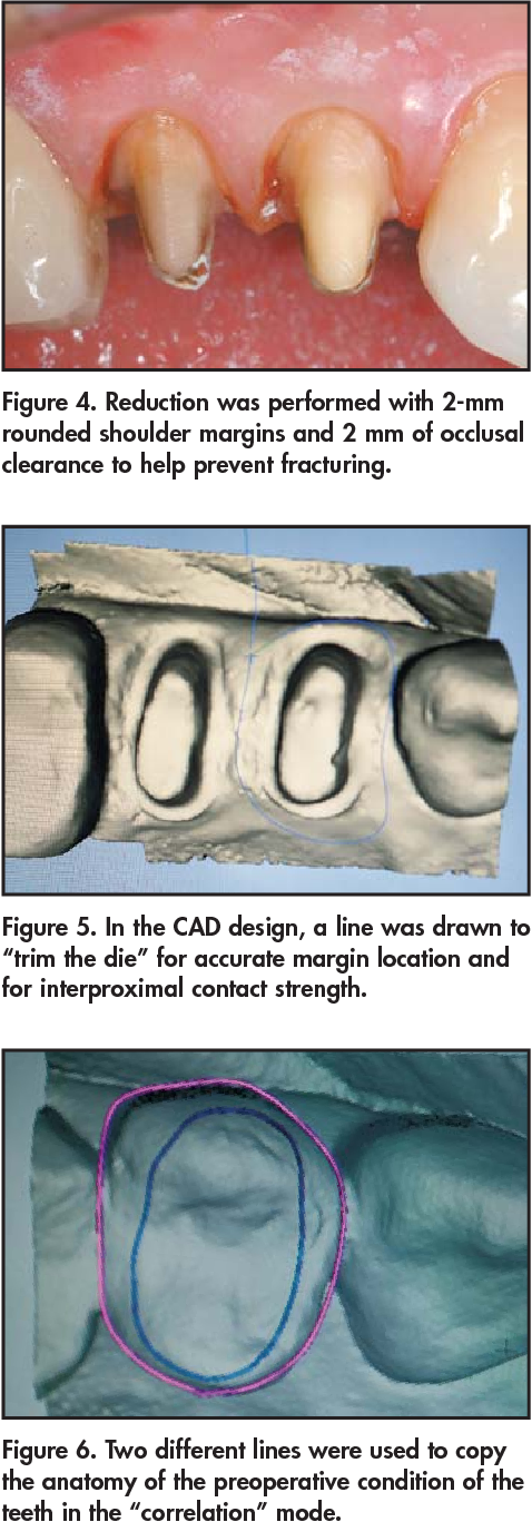 """Figure 5. In the CAD design, a line was drawn to """"trim the die"""" for accurate margin location and for interproximal contact strength."""