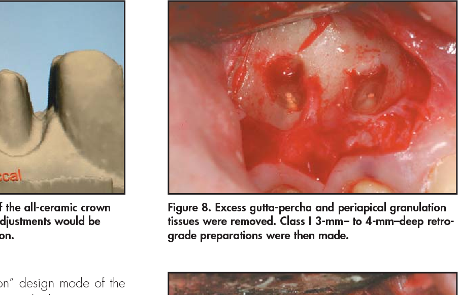 Figure 8. Excess gutta-percha and periapical granulation tissues were removed. Class I 3-mm– to 4-mm–deep retrograde preparations were then made.