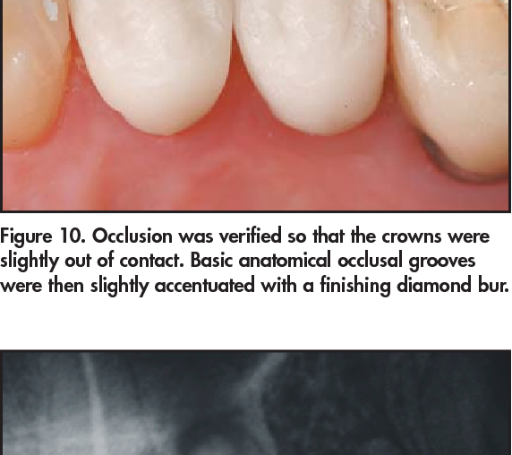 Figure 12. At 6 weeks posttreatment, healing was acceptable and the patient had elimination of biting pain. The definitive all-ceramic crown restorations provide natural function and aesthetics.