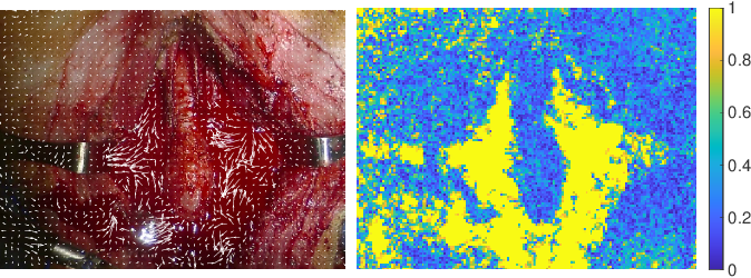 Figure 2 for Autonomous Robotic Suction to Clear the Surgical Field for Hemostasis using Image-based Blood Flow Detection