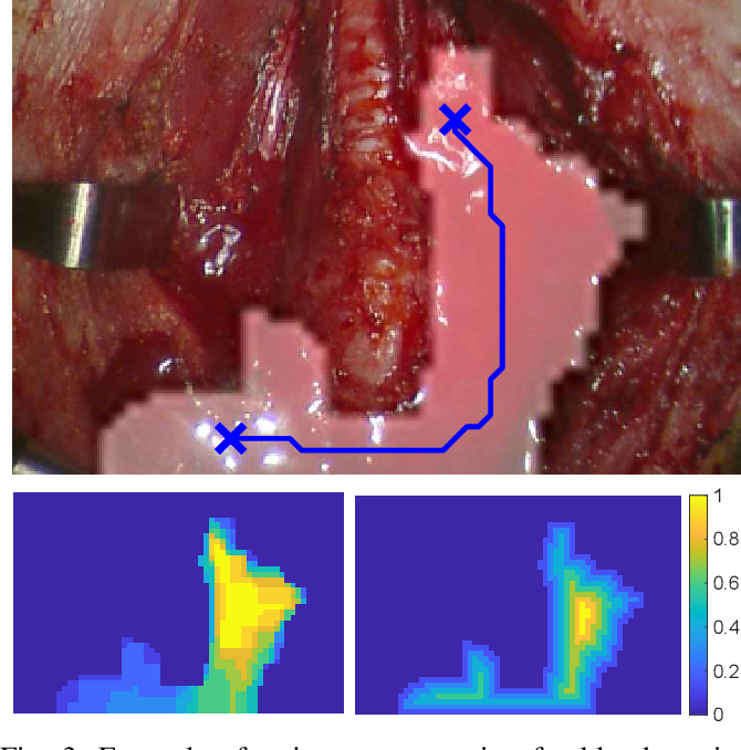 Figure 3 for Autonomous Robotic Suction to Clear the Surgical Field for Hemostasis using Image-based Blood Flow Detection