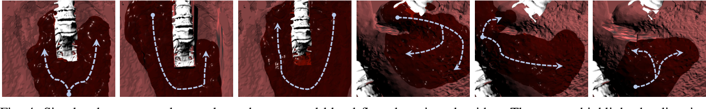 Figure 4 for Autonomous Robotic Suction to Clear the Surgical Field for Hemostasis using Image-based Blood Flow Detection