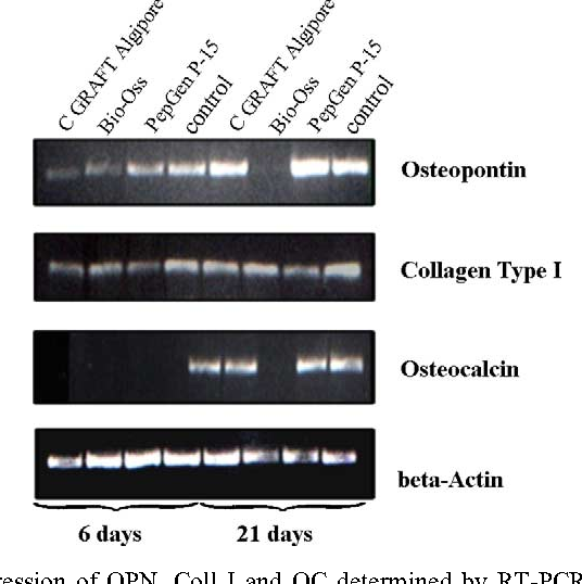 Fig. 3. Gene expression of OPN, Coll I and OC determined by RT-PCR. RT-PCR analysis was performed on cells cultivated on HA materials and TCPS for 6 and 21 days. b-Actin was used as a housekeeping gene. Results are visualized on a 1% agarose gel stained with ethidium bromide.