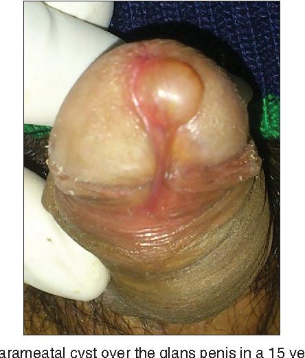 Penis inside urethra
