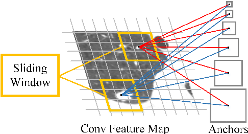 Figure 3 for Accurate Pulmonary Nodule Detection in Computed Tomography Images Using Deep Convolutional Neural Networks