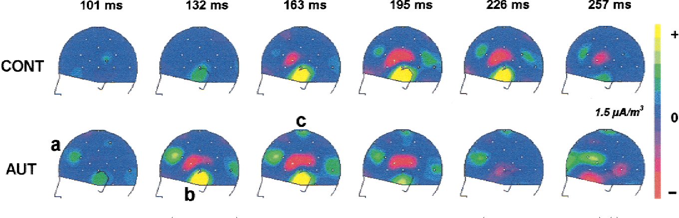 Figure 4. MMN SCD maps ~left hemiscalp! between 100 and 260 ms post stimulus in each group ~top: CONT, bottom: AUT!. ~a! left frontal source, ~b! temporal sink0source pattern, and ~c! central source.