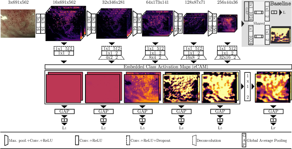 Figure 3 for Interpretable Fully Convolutional Classification of Intrapapillary Capillary Loops for Real-Time Detection of Early Squamous Neoplasia