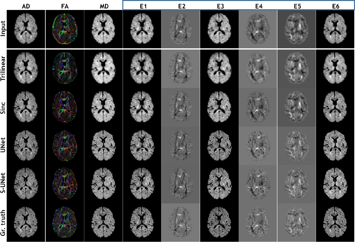 Figure 3 for ShuffleUNet: Super resolution of diffusion-weighted MRIs using deep learning