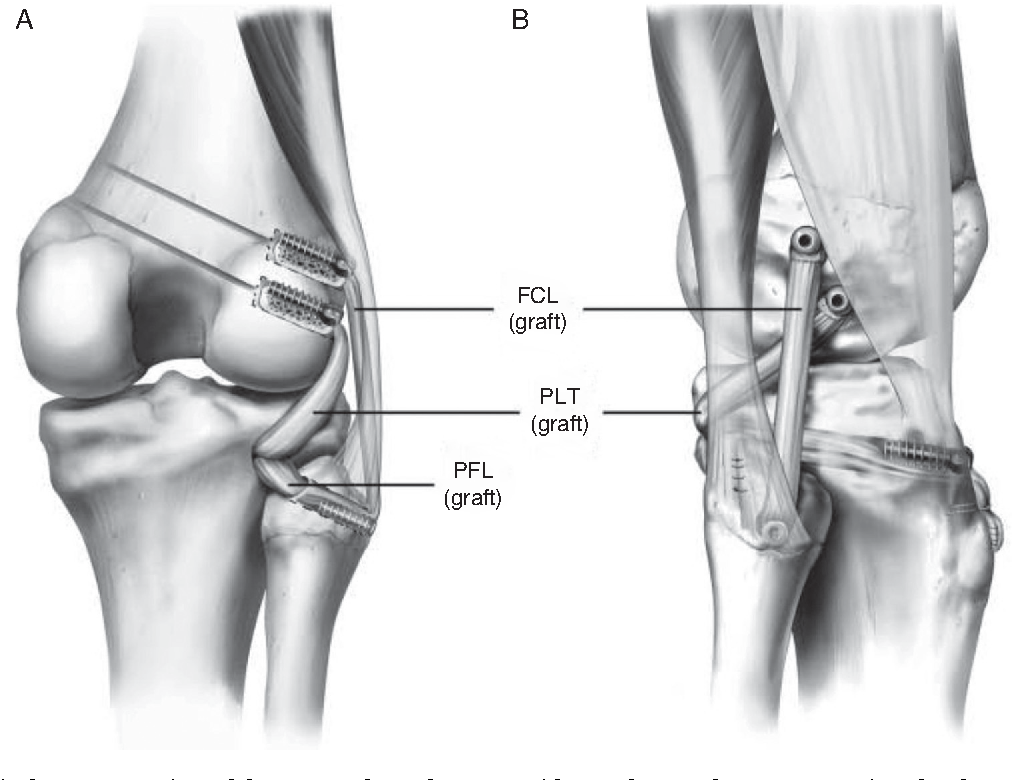 Injuries to posterolateral corner of the knee a comprehensive figure 2 ccuart Images