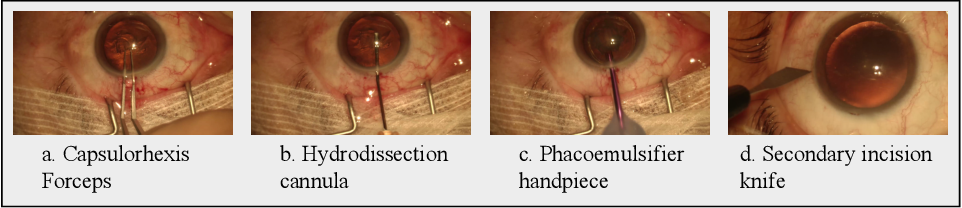 Figure 1 for DeepPhase: Surgical Phase Recognition in CATARACTS Videos