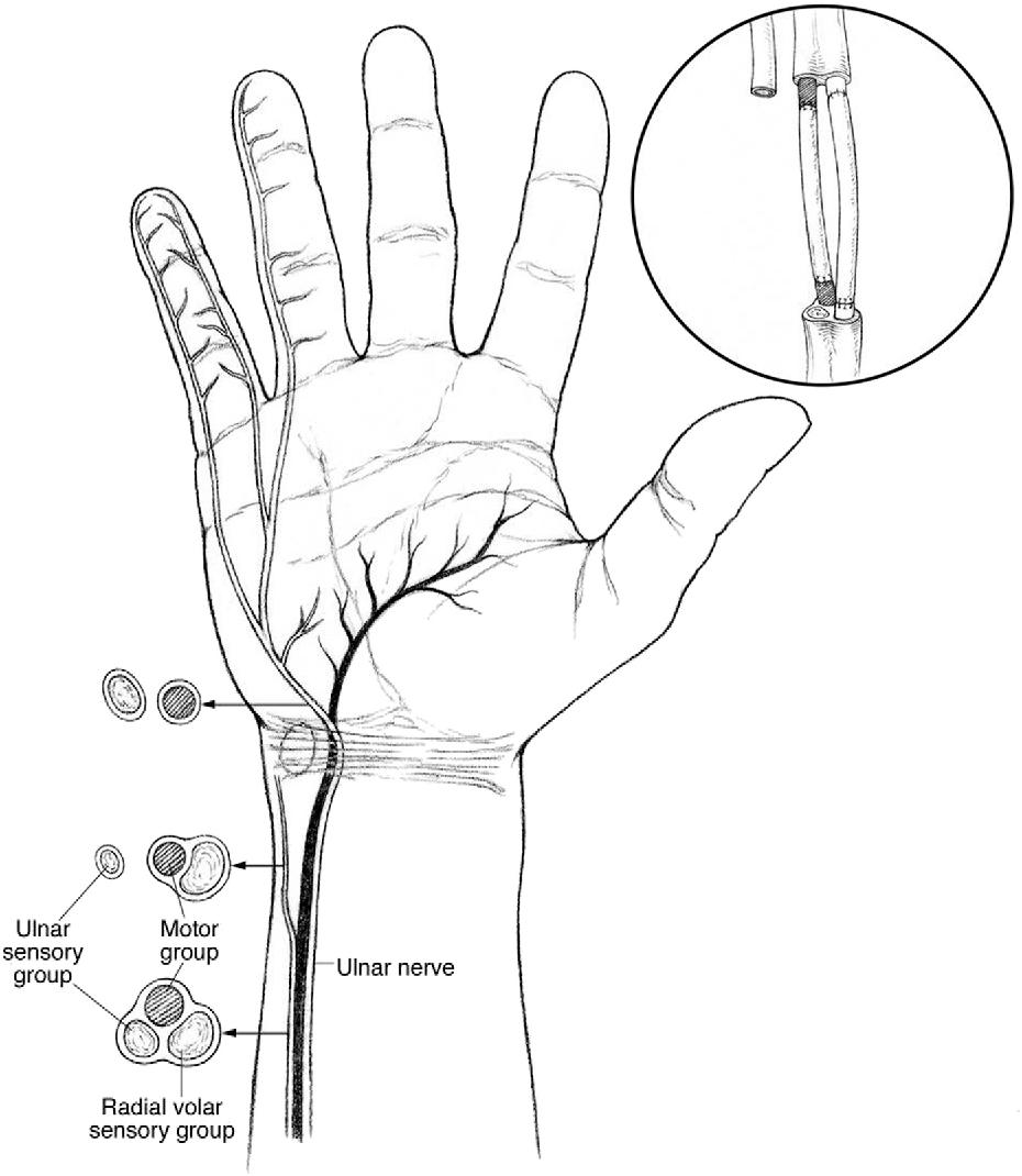 Figure 2 From Management Of Ulnar Nerve Injuries Semantic Scholar