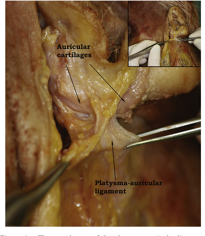 Figure 6 From Lores Fascia And The Platysma Auricular Ligament Are