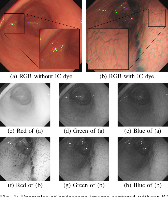 Figure 1 for 3D Reconstruction of Whole Stomach from Endoscope Video Using Structure-from-Motion