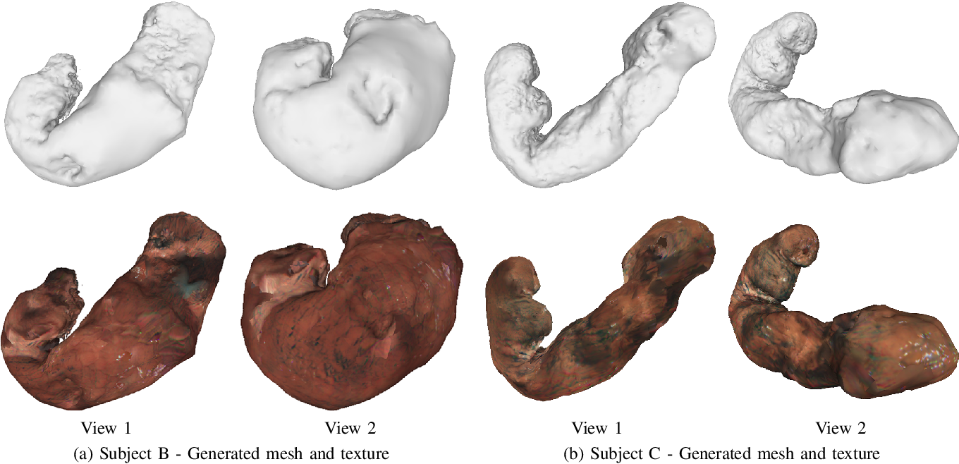 Figure 3 for 3D Reconstruction of Whole Stomach from Endoscope Video Using Structure-from-Motion