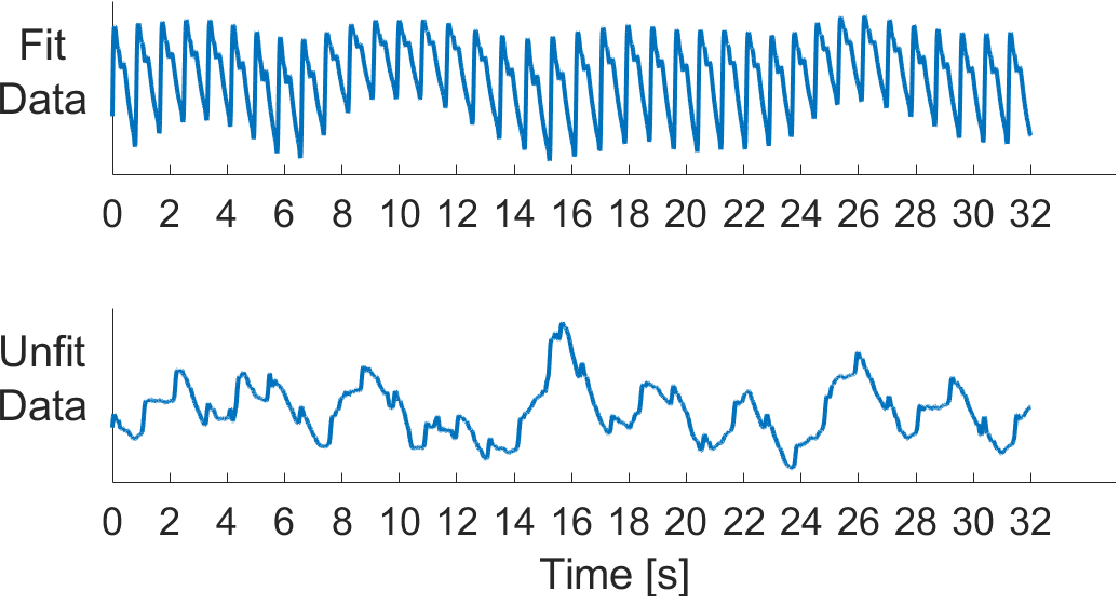 Figure 4 for A Novel Non-Invasive Estimation of Respiration Rate from Photoplethysmograph Signal Using Machine Learning Model
