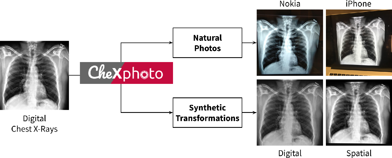 Figure 1 for CheXphoto: 10,000+ Smartphone Photos and Synthetic Photographic Transformations of Chest X-rays for Benchmarking Deep Learning Robustness