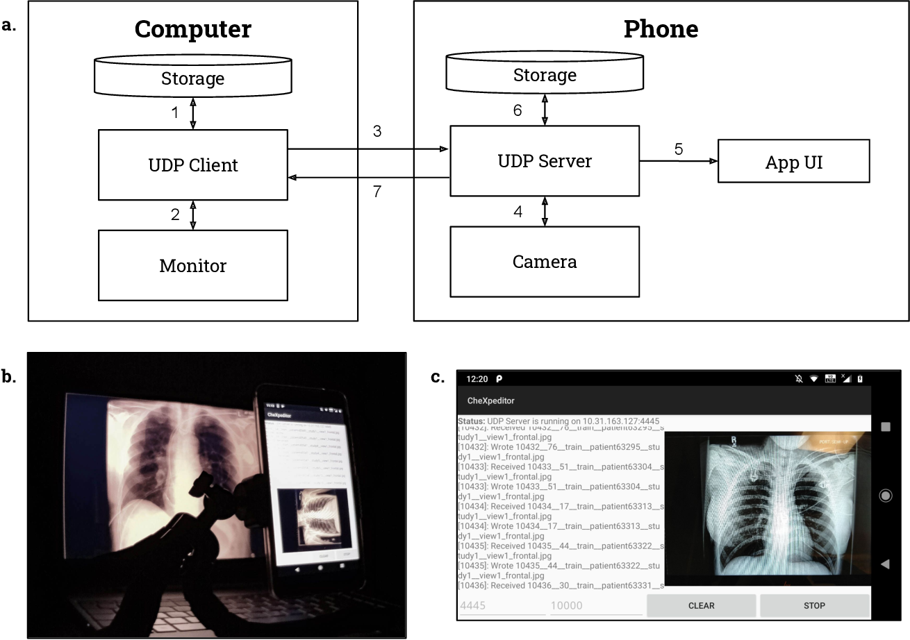 Figure 3 for CheXphoto: 10,000+ Smartphone Photos and Synthetic Photographic Transformations of Chest X-rays for Benchmarking Deep Learning Robustness