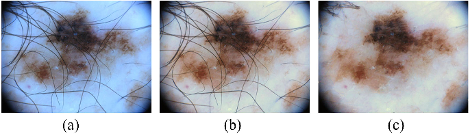 Figure 3 for Supervised Saliency Map Driven Segmentation of the Lesions in Dermoscopic Images