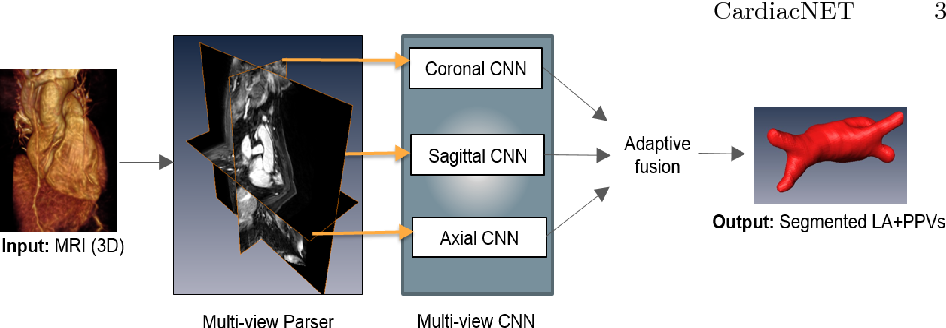 Figure 1 for CardiacNET: Segmentation of Left Atrium and Proximal Pulmonary Veins from MRI Using Multi-View CNN