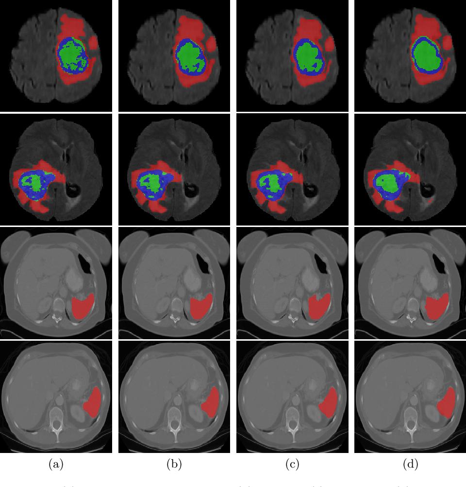 Figure 4 for UNETR: Transformers for 3D Medical Image Segmentation