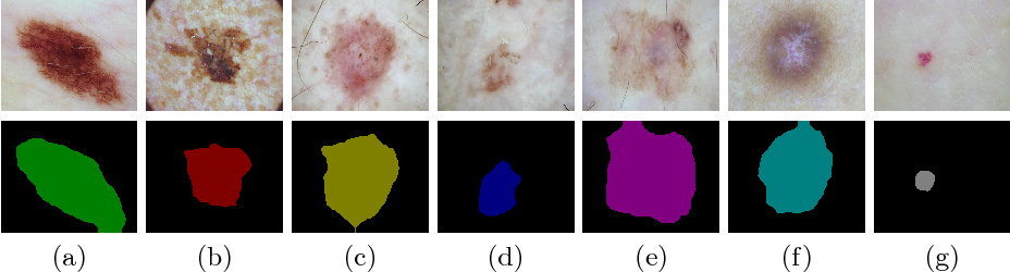 Figure 3 for Multi-Class Lesion Diagnosis with Pixel-wise Classification Network