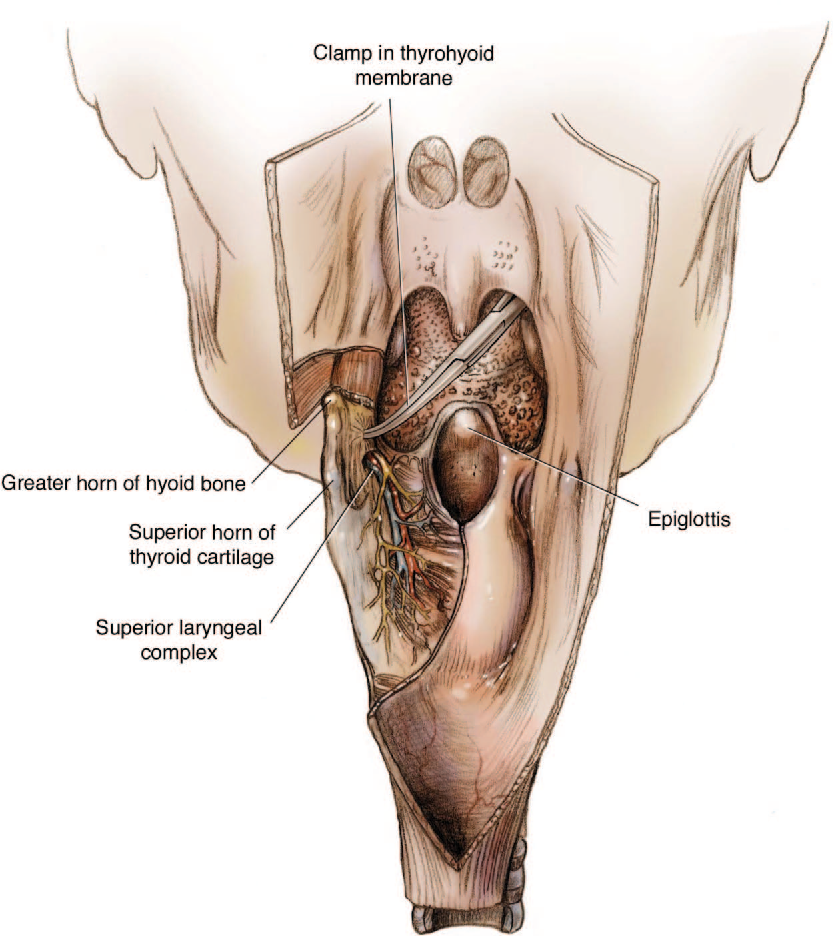 Figure 2 from Cervical pharyngostomy: an old technique revisited ...