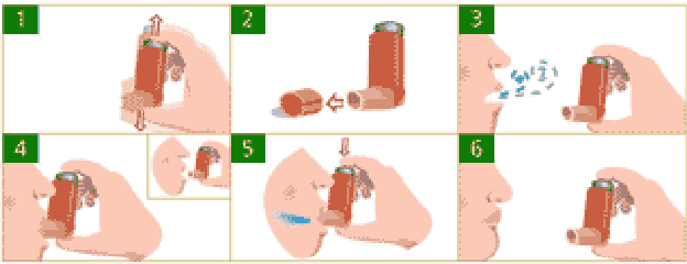 FIGURE 1. pMDI Usage described in [24]. 1) Shake the pMDI 2) Remove the cap 3) Exhale 4) Place the pMDI inside your mouth 5) While inhaling press the pMDI drug actuation button 6) Hold your breath for 10 seconds and breath out.