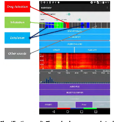 FIGURE 8. Classification result. The red color corresponds to drug actuation, the green color corresponds to inhalations, the blue color corresponds to exhalations and the gray to other sounds. Each colored area of the classification result corresponds to a segment of the spectrogram right below.