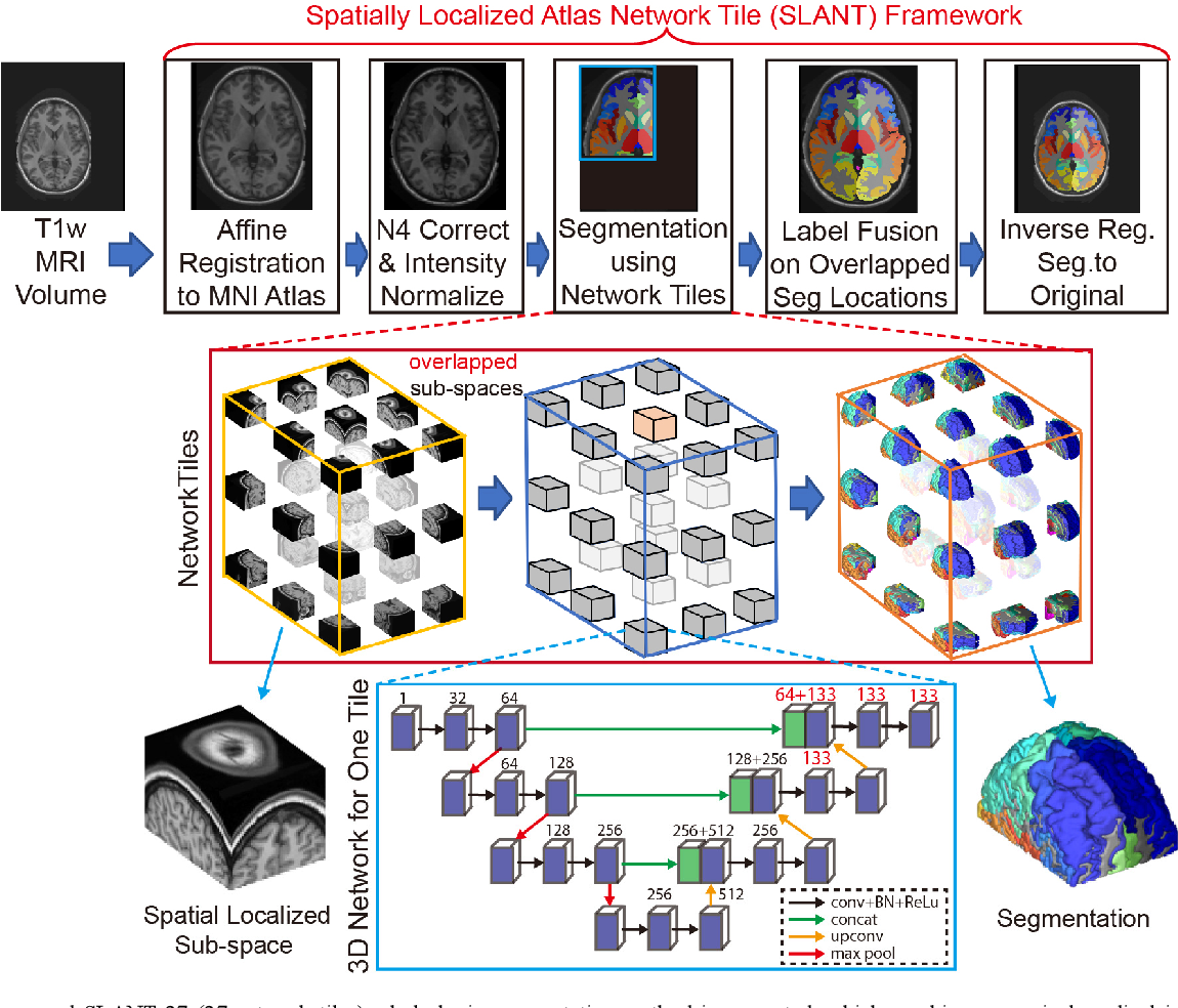 Figure 1 for 3D Whole Brain Segmentation using Spatially Localized Atlas Network Tiles
