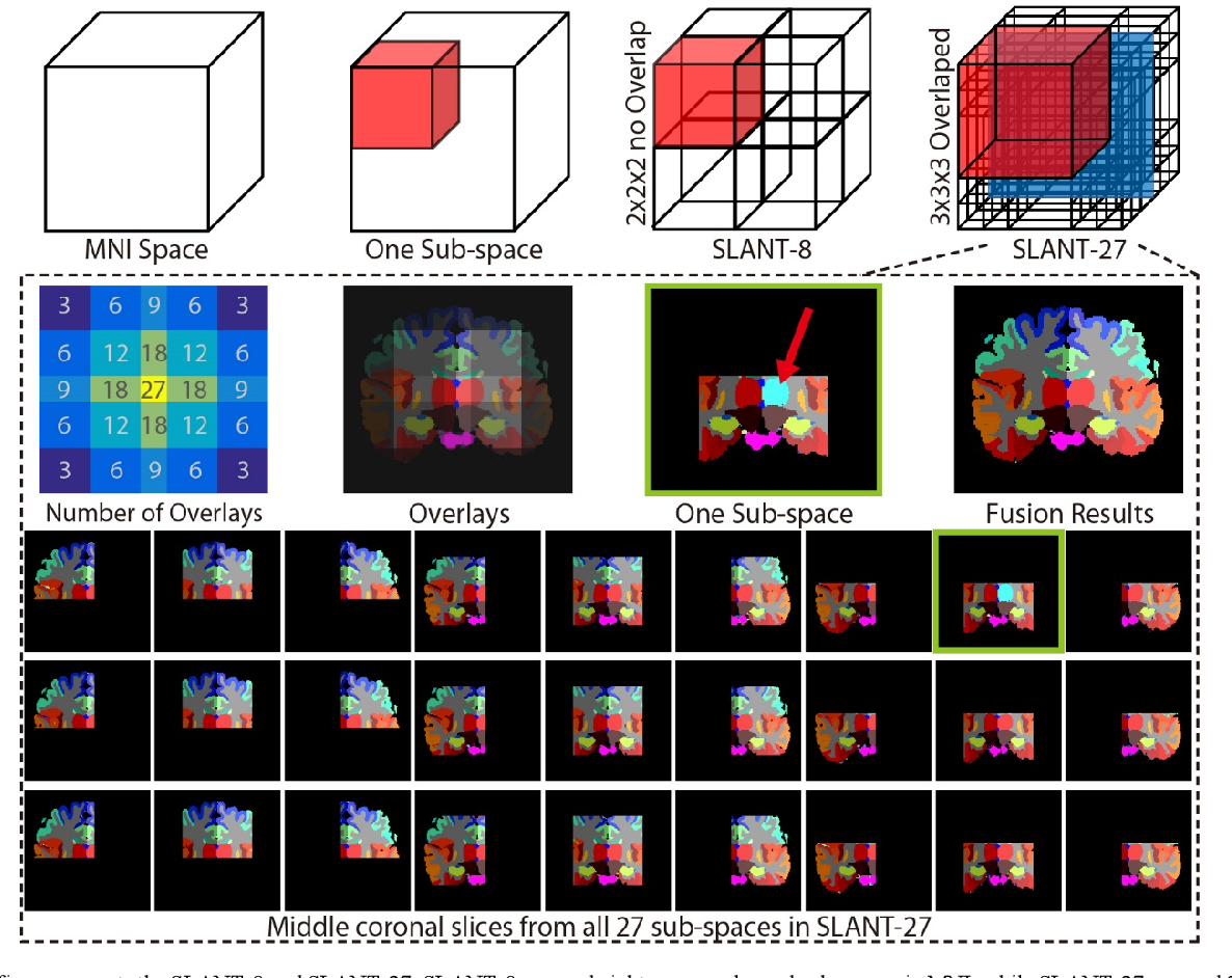 Figure 3 for 3D Whole Brain Segmentation using Spatially Localized Atlas Network Tiles