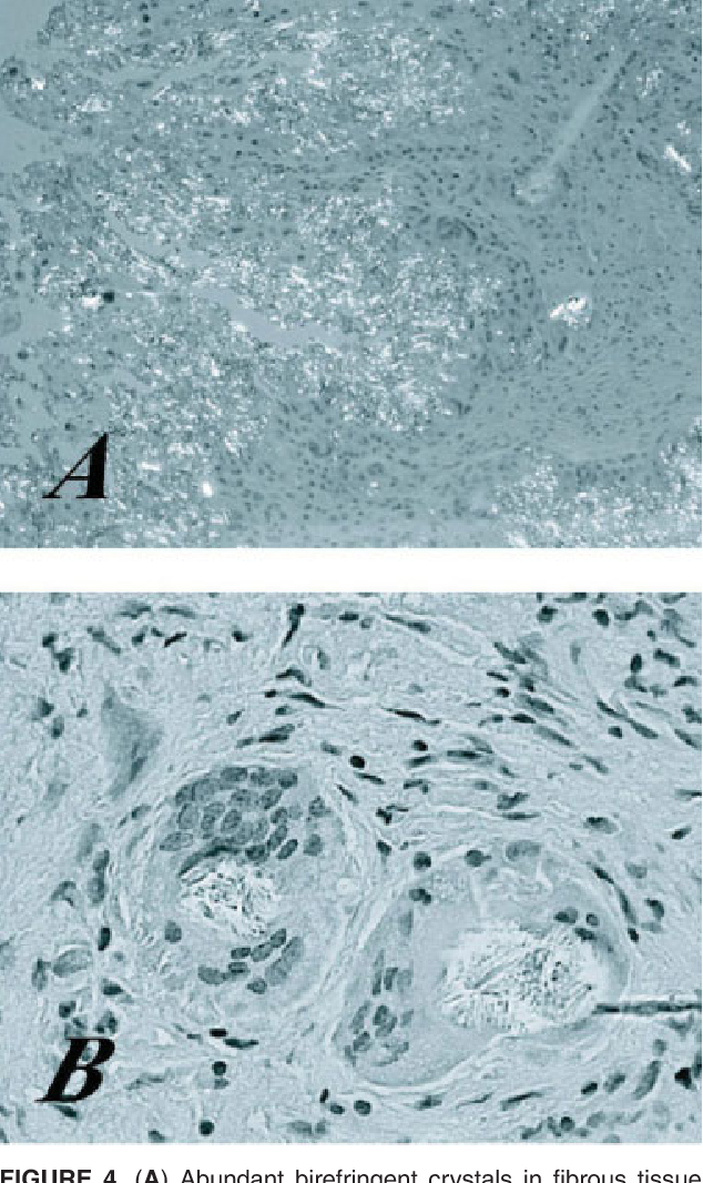 Figure 4 from Pseudogout mimicking an infratemporal fossa tumor