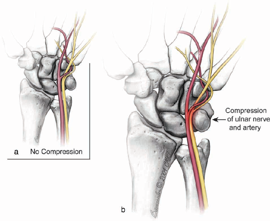 Compression of the ulnar nerve and spasm of the ulnar artery in ...