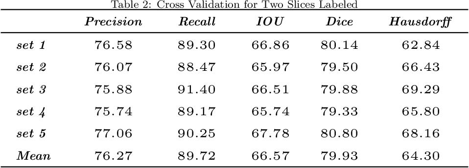 Figure 4 for Seismic Fault Segmentation via 3D-CNN Training by a Few 2D Slices Labels