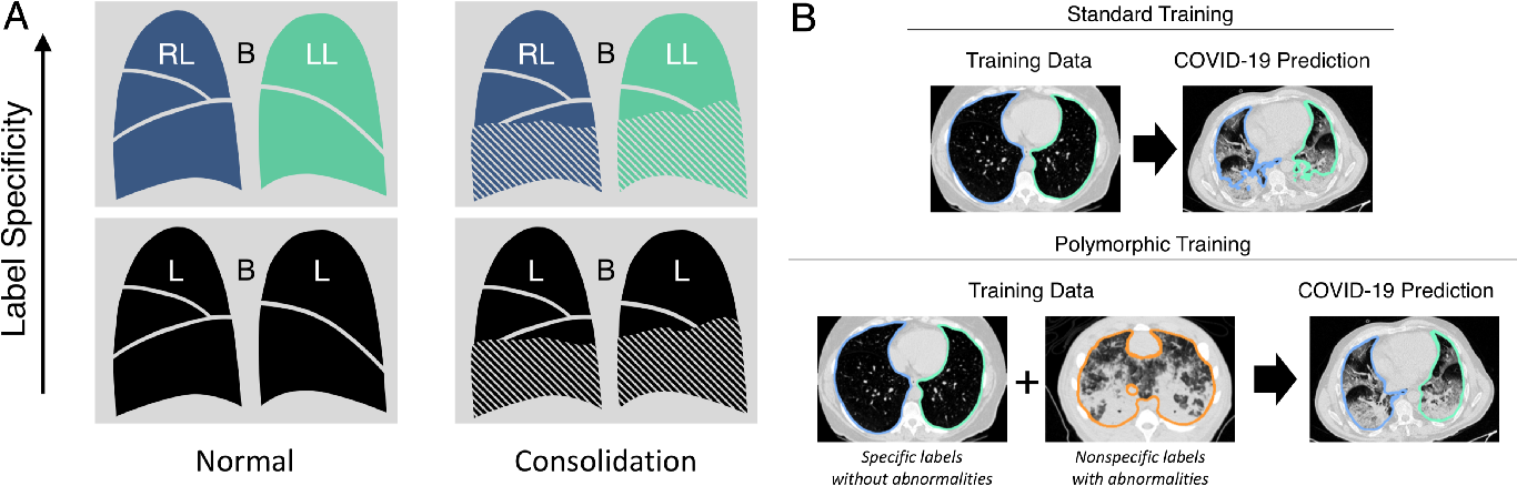 Figure 1 for CT Image Segmentation for Inflamed and Fibrotic Lungs Using a Multi-Resolution Convolutional Neural Network