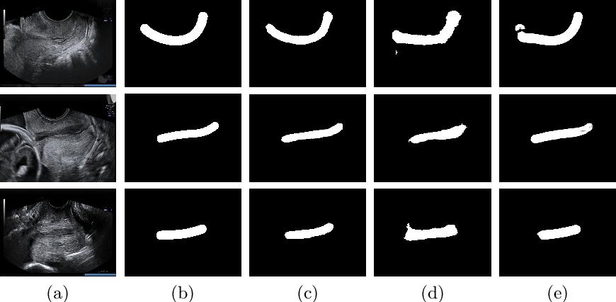 Figure 3 for Spontaneous preterm birth prediction using convolutional neural networks